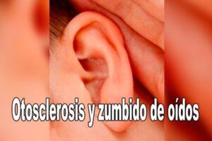 Otosclerosis y zumbido de oídos
