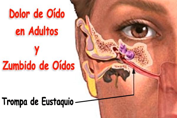 Dolor de oído en adultos - Zumbido de oídos