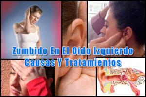 Zumbido En El Oído Izquierdo: Causas Y Tratamientos